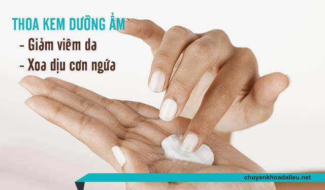 Thoa kem dưỡng ẩm là cách trị viêm da, giảm ngứa hiệu quả