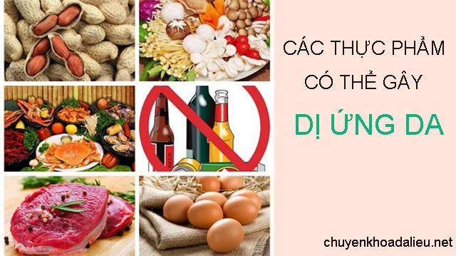 Các thực phẩm có thể gây dị ứng da