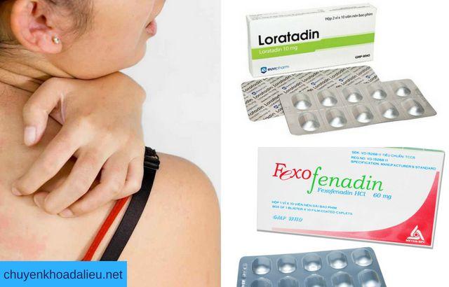 Các thuốc kháng histamin chữa viêm da