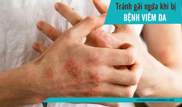 Tránh gãi ngứa khi bị viêm da