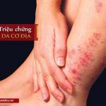 triệu chứng bệnh viêm da cơ địa