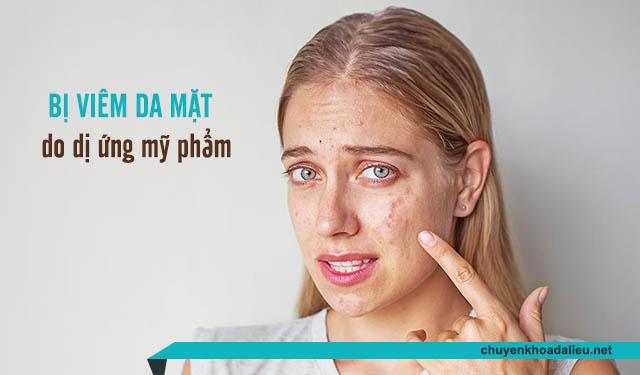 Dị ứng mỹ phẩm là nguyên nhân gây viêm da mặt hàng đầu ở chị em phụ nữ