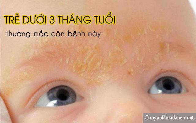 Viêm da tiết bã nhờn ở mặt thường ảnh hưởng đến trẻ sơ sinh dưới 3 tháng tuổi