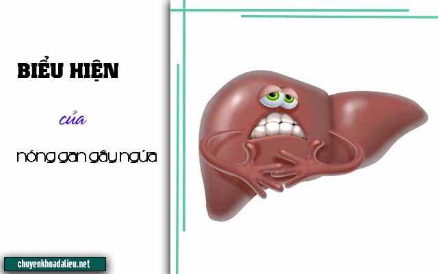 Biểu hiện của chứng nóng gan gây ngứa