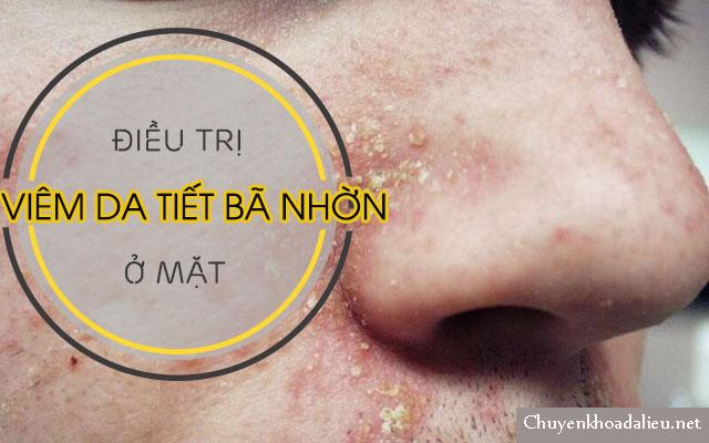 Bệnh viêm da tiết bã nhờn ở mặt