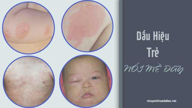 dấu hiệu bệnh mề đay ở trẻ