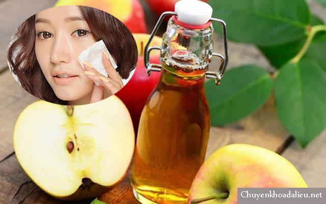 Thoa giấm táo lên mặt trị viêm da tiết bã nhờn tận gốc