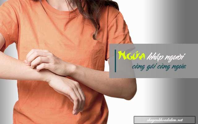 Ngứa khắp người càng gãi càng ngứa là một hiện tượng phổ biến