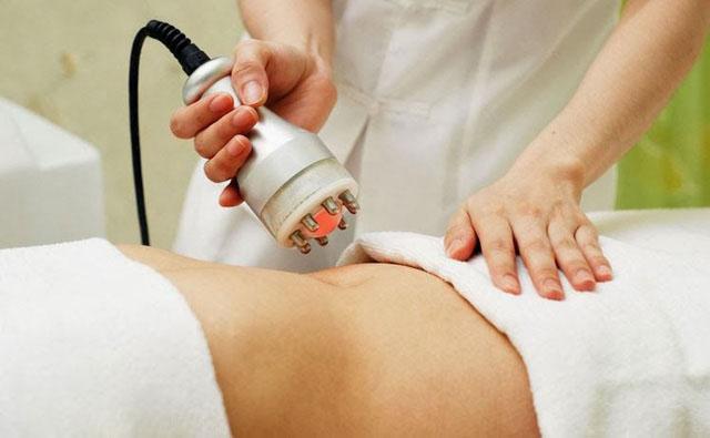 cách trị rạn da sau sinh hiệu quả bằng laser