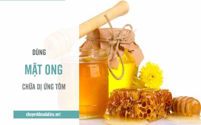 dùng mật ong chữa dị ứng tôm