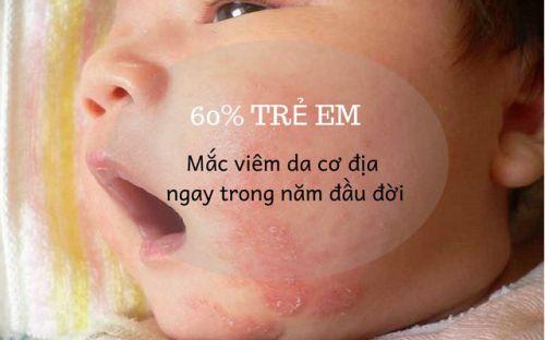 Theo thống kê có khoảng 60% trẻ em mắc viêm da cơ địa