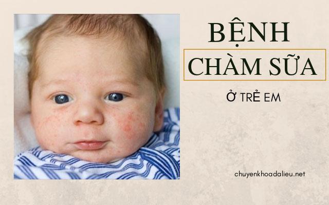 các bệnh ngoài da thường gặp ở trẻ em