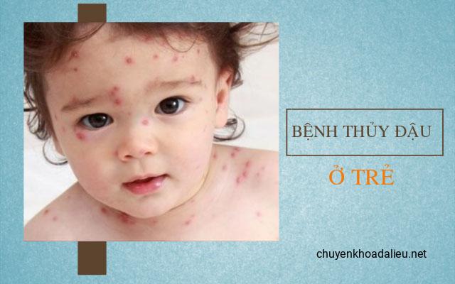 Bệnh ngoài da thường gặp ở trẻ