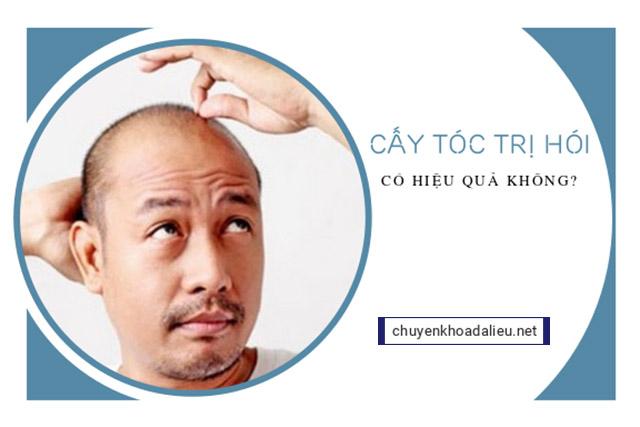 Cấy tóc trị hói hiệu quả không