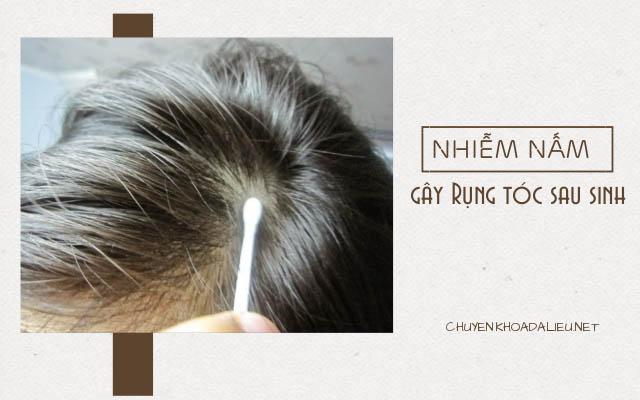 nhiễm nấm là nguyên nhân gây rụng tóc sau sinh