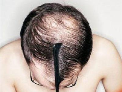 Hành trình phục hồi mái tóc dày của chàng trai có nguy cơ hói đầu 2