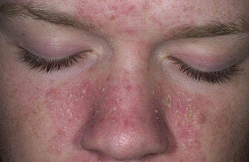 Triệu chứng bệnh viêm da tiết bã