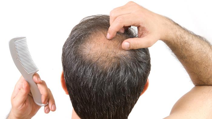 Tình trạng hói đầu ở Việt Nam đang ngày càng gia tăng