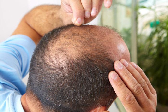 Cần xác định rõ mức độ hói đầu để tìm loại thuốc thích hợp