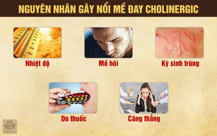 5 nguyên nhân gây ngứa nổi mề đay cholinergic