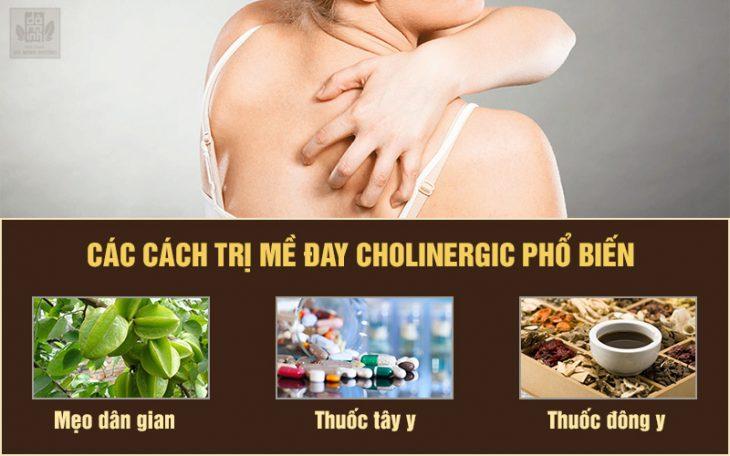 3 cách chữa mề đay cholinergic