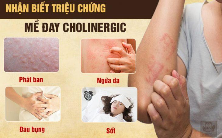 Sóm phát hiện dấu hiệu bệnh nổi mề đay cholinergic để chữa trị kịp thời