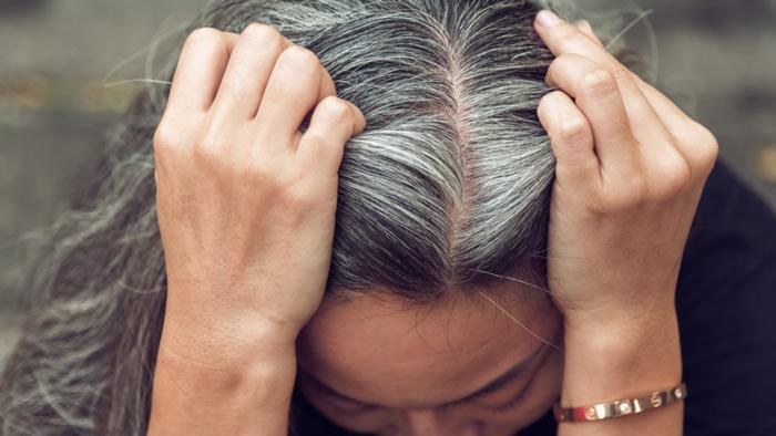 Tìm ra phác đồ điều trị phù hợp là điều bệnh nhân tóc bạc sớm mong muốn nhất