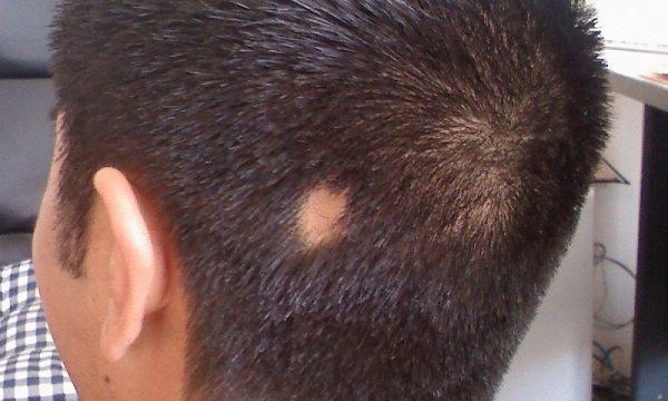 Tóc rụng từng mảng phương pháp điều trị từ chuyên gia