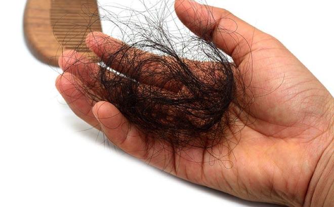 viêm da tiết bã gây rụng tóc