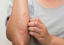 Bệnh chàm có di truyền không?