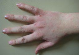 Bệnh chàm có nguy hiểm không?