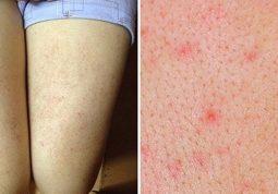Tìm hiểu về bệnh chàm nang lông và cách điều trị