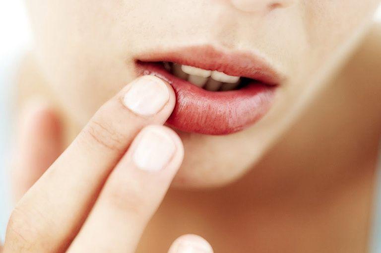 Tìm hiểu các biểu hiện của bệnh chàm môi và cách điều trị