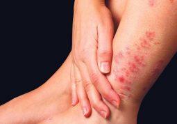 Tìm hiểu các thông tin về bệnh chàm tổ đỉa