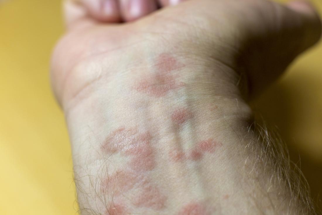 chữa bệnh chàm bằng thuốc đông y