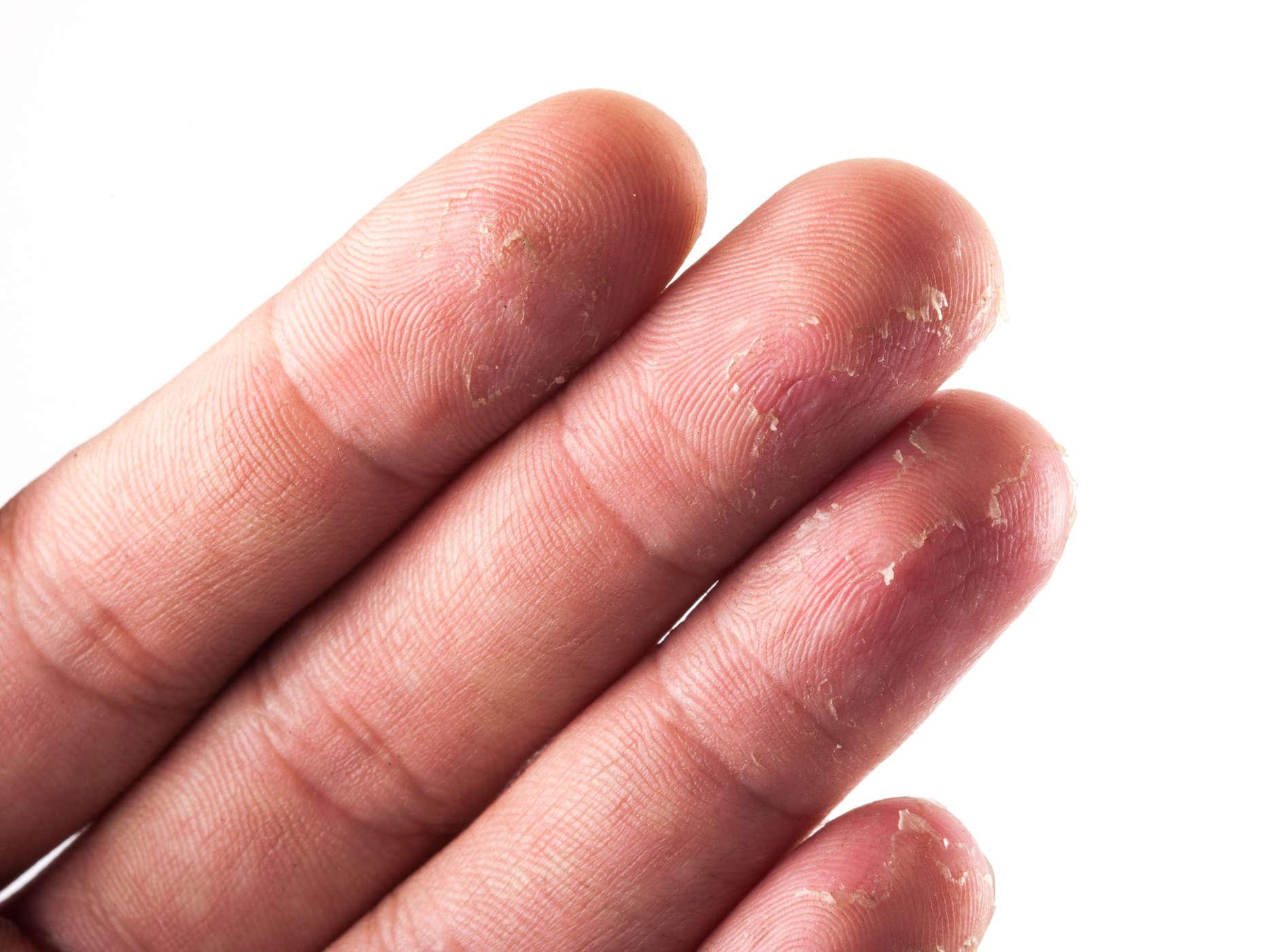 da tay dễ bị khô, nứt nẻ, mất độ ẩm