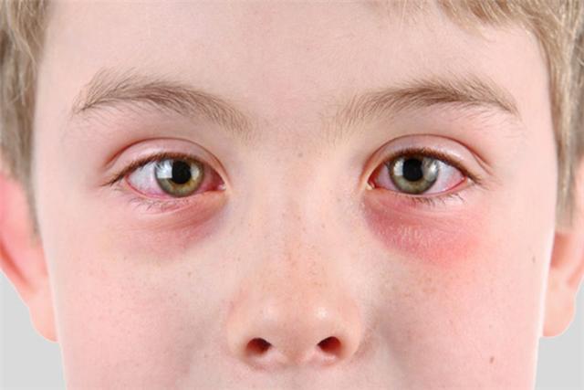 dị ứng vùng da quanh mắt