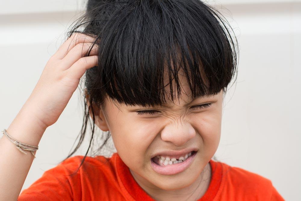 nổi mẩn ngứa da đầu ở trẻ em