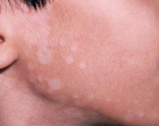 Nổi nốt trắng trên da có thể là dấu hiệu của nhiều bệnh nguy hiểm