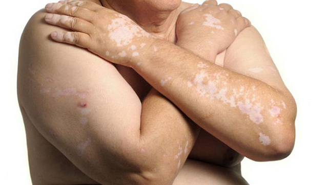 Bị bệnh bạch biến có thể gây nổi nốt trắng trên da