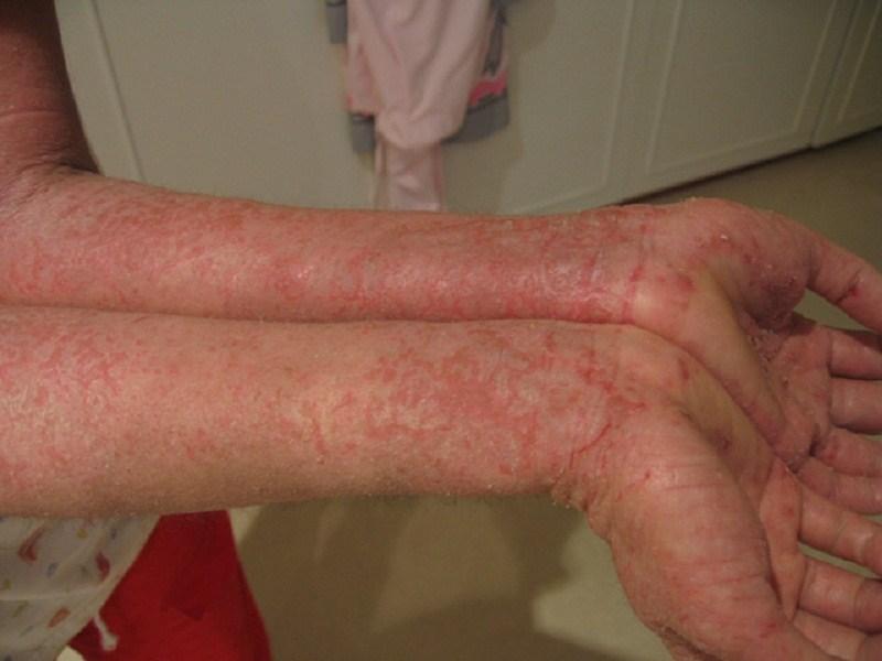 Bệnh eczema gây biến chứng ảnh hưởng đến thẩm mỹ, cuộc sống