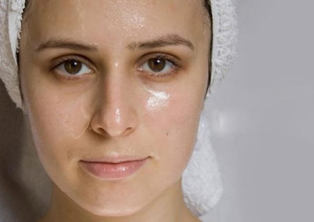 Bệnh viêm da dầu là gì?