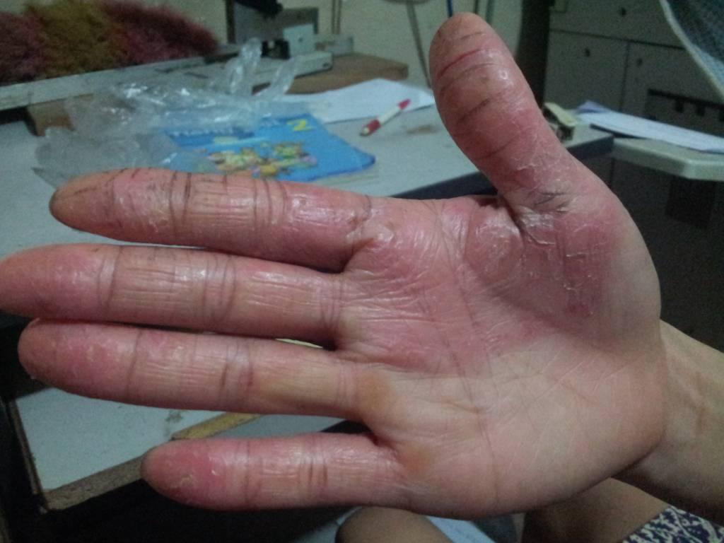 da tay bị nứt nẻ chảy máu