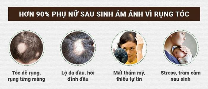 Hơn 90% phụ nữ bị rụng tóc sau sinh