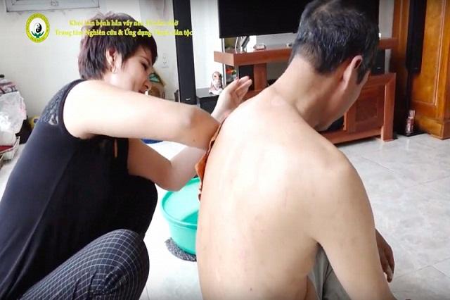 Chăm sóc bệnh vảy nến tại nhà