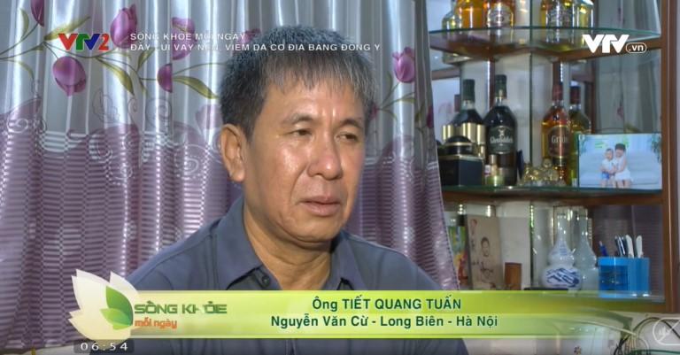 Ông Tuấn chia sẻ tình trạng bệnh vảy nến trên VTV2