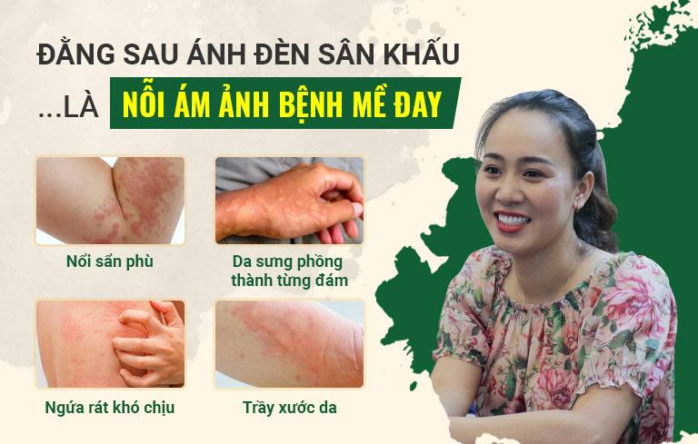 Đã có khoảng thời gian diễn viên Khánh Linh về nhà đi con bị mề đay mẩn ngứa hành hạ
