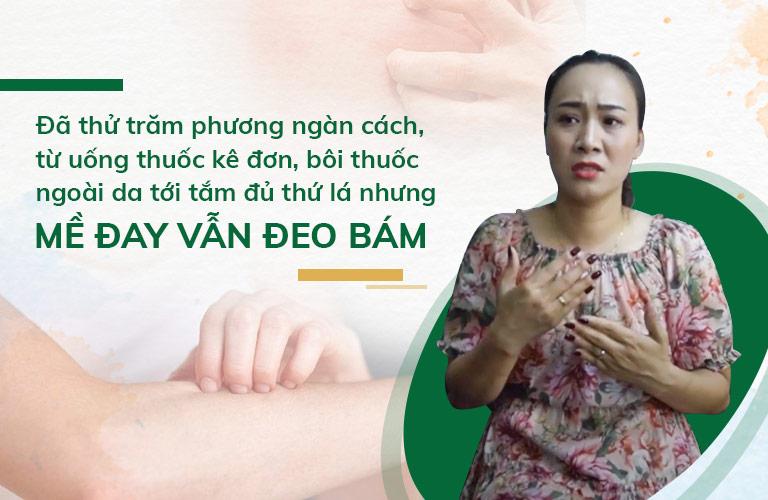 Mặc dù đã áp dụng trăm phương ngàn cách nhưng mẩn ngứa vẫn không buông tha diễn viên Khánh Linh