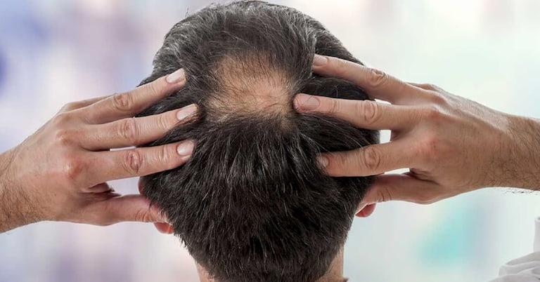 Rụng tóc có thể do nhiều nguyên nhân trong đó di truyền