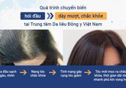 Quá trình chuyển biến từ hói đầu thành dày mượt, chắc khỏe tại Trung tâm Da liễu Đông y Việt Nam
